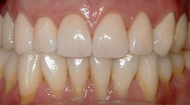 close-up of patient's smile with yellowing teeth