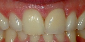close-up of patient's teeth