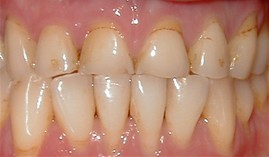 close-up of patient's decaying teeth