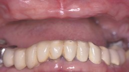 close-up of patient's teeth and gums