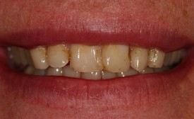 close-up of patient's smile with yellow teeth
